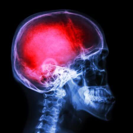 Brain Injury 1 Velletta Lawyers Victoria BC